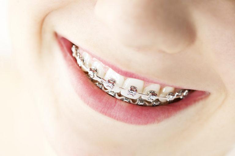 Online Dental Work? AL Officials Don't Smile, Get Sued